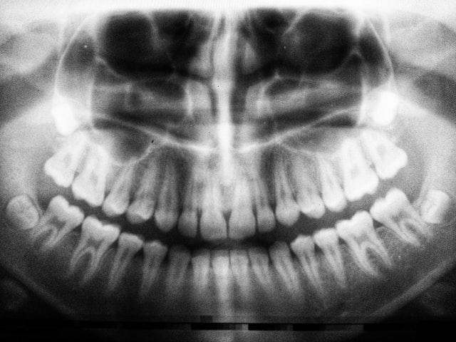 manfaat Jengkol menjaga kesehatan tulang dan gigi