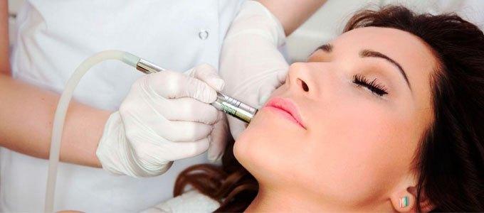 laser tahi lalat natasha skin care - posciety