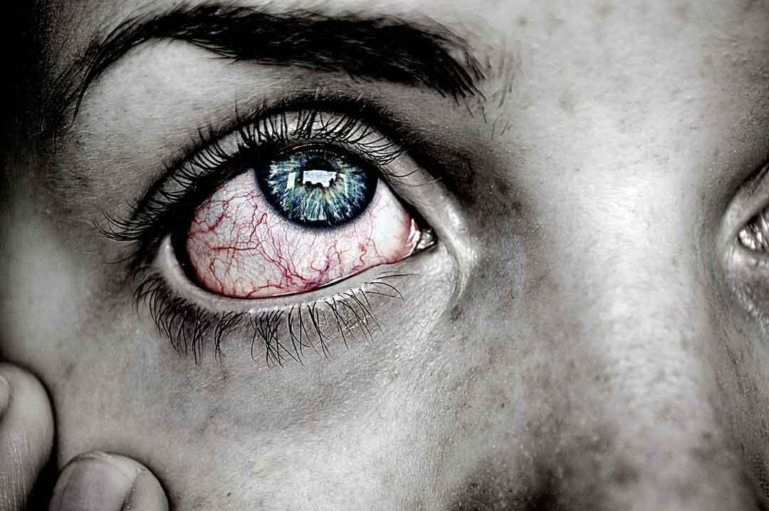 degenrasi makula penyakit mata - posciety