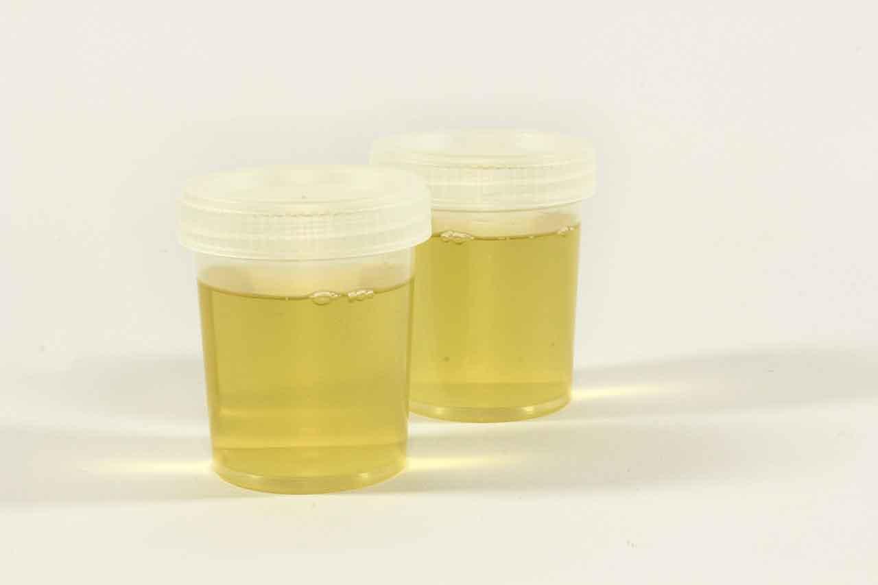 mengetahui penyakit dari air warna urine kencing - posciety