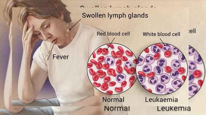 pengertian gejalan leukimia - posciety