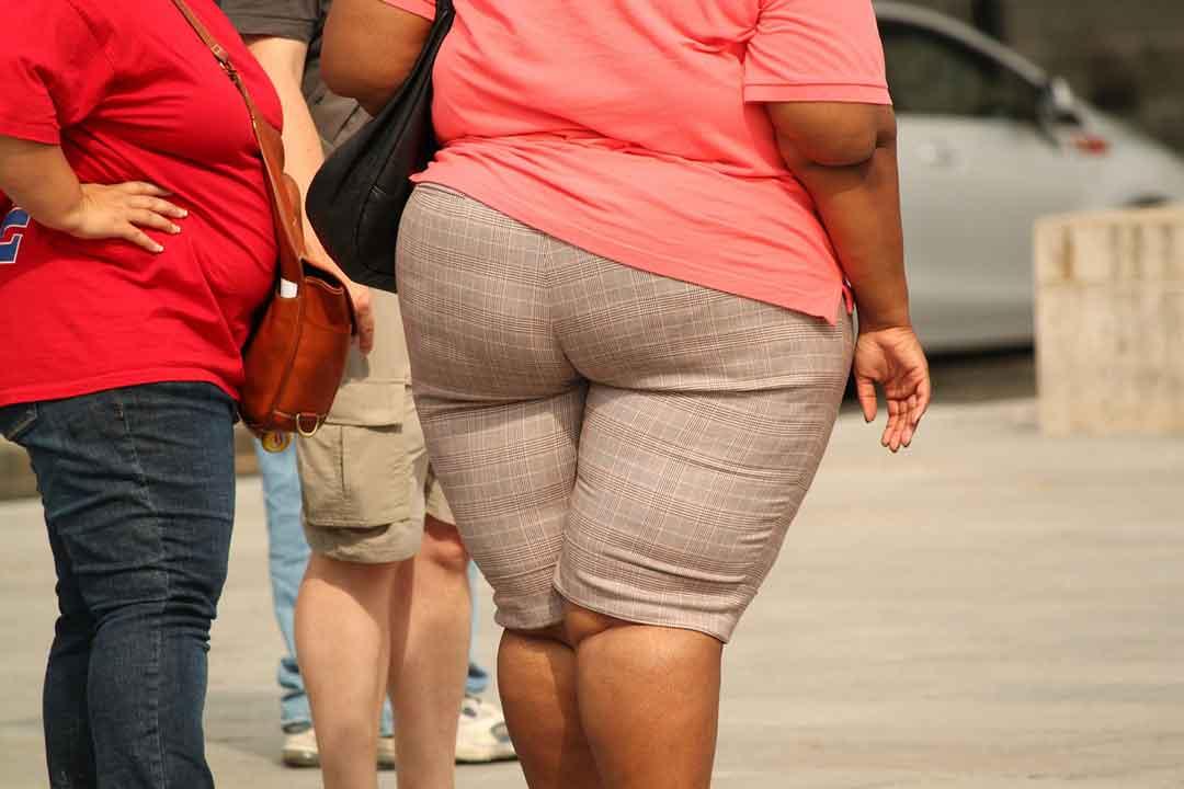 pengertian obesitas dan bahayanya - posciety