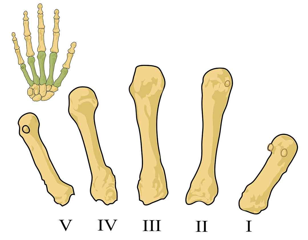 rhematoid arthistik faktor rematik mengobati reumatik - posciety